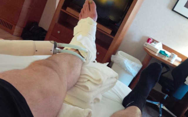 Simon Mignolet tweets ankle injury that could keep him out of Belgium internationals
