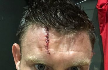 (Photo) Liverpool star shows off gruesome injury from Napoli win