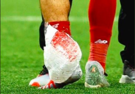 Mo Salah posts ankle pic after report suggests he'll be out for a month