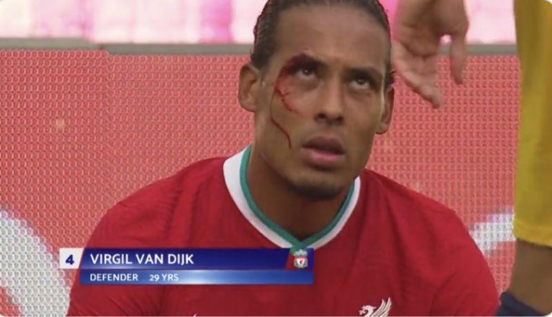 (Image) Van Dijk picks up a pasty cut in friendly v Rb Salzburg